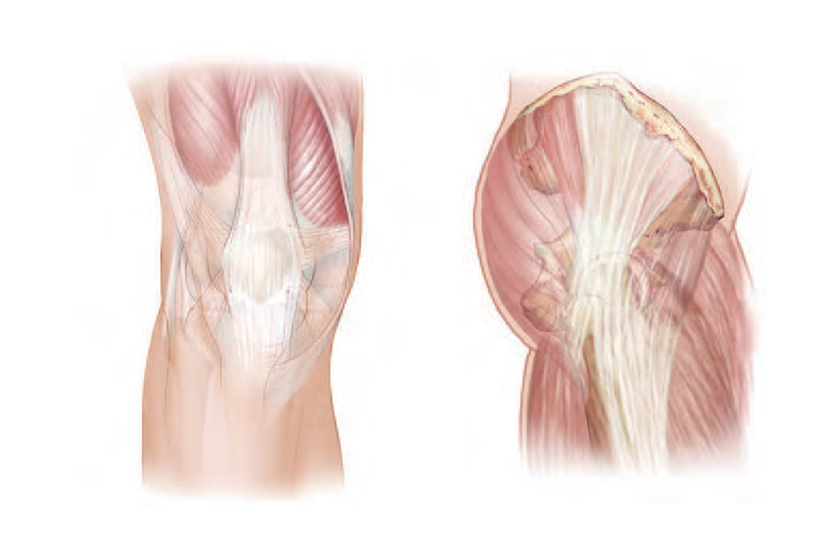 Surgical Approaches to Knee and Hip Replacement